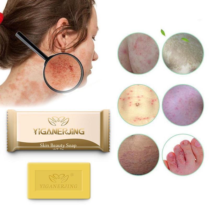 Sulfur Soap Eczema Stop Itching Acne Inexpensive CureSkin Repair Acne Psoriasis Seborrhea Eczema Anti Fungus TSLM1
