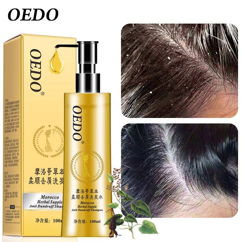 Anti-dandruff Fragrance Fragrance Shampoo Dry Shampoo Treatment Of Rough Hair Repair Nourishing Oil Hair Care Black Hair Improve