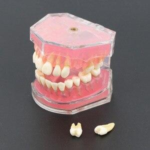 Image 4 - Dental Studie Lehre Modell Standard Modell Abnehmbare Zähne Weichen Gum ERWACHSENE TYPODONT Modell