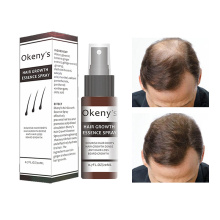 Имбирь эссенция для роста волос спрей 20 мл восстановление роста выпадения волос сыворотка для роста мужчин и женщин против выпадения волос Предотвращение облысения TSLM1