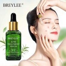 BREYLEE leczenie trądziku Serum do twarzy maska przeciw trądzikowi pryszcz blizna Remover nawilżający wybielanie pielęgnacja skóry twarzy krem esencjonalny 17ml