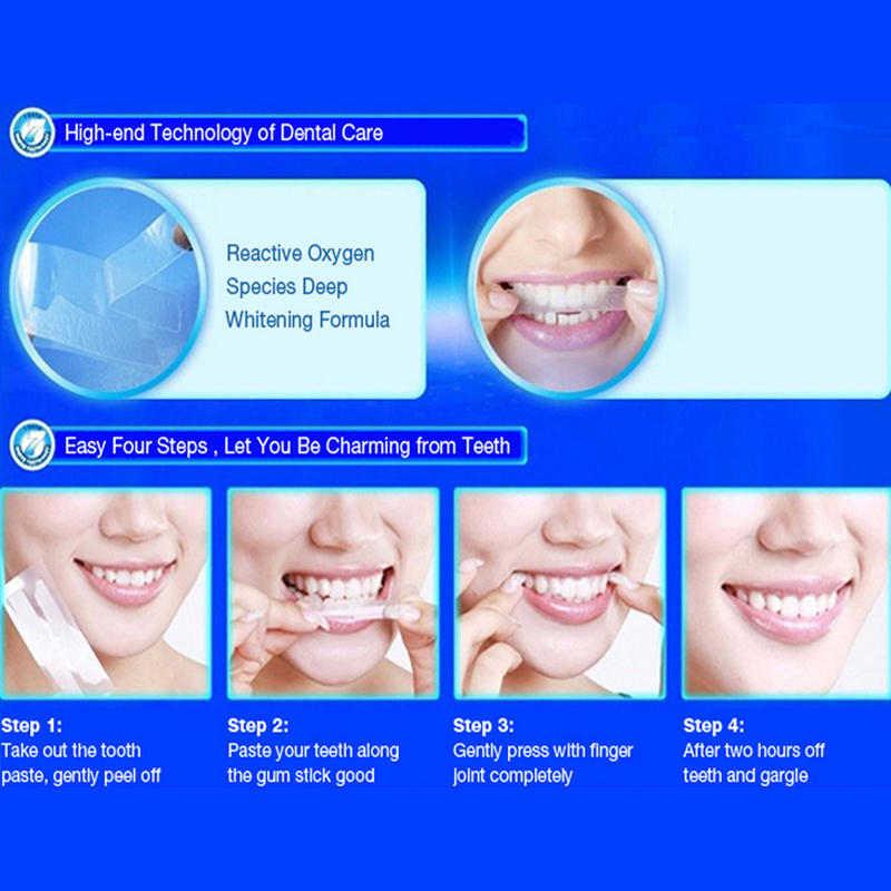 Hiệu Ứng Nha Khoa Whitestrips Làm Trắng Răng Cao Cấp Dải Sọc Nóng Làm Trắng Răng Sản Phẩm Vệ Sinh Răng Miệng Miệng CHĂM SÓC RĂNG
