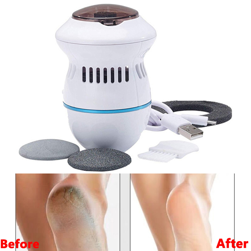 2020 Hot Sale Pedi Remover Vac Rechargeable Electronic Foot Files Clean Tools Feet Care Perfect For Hard Cracked Skin