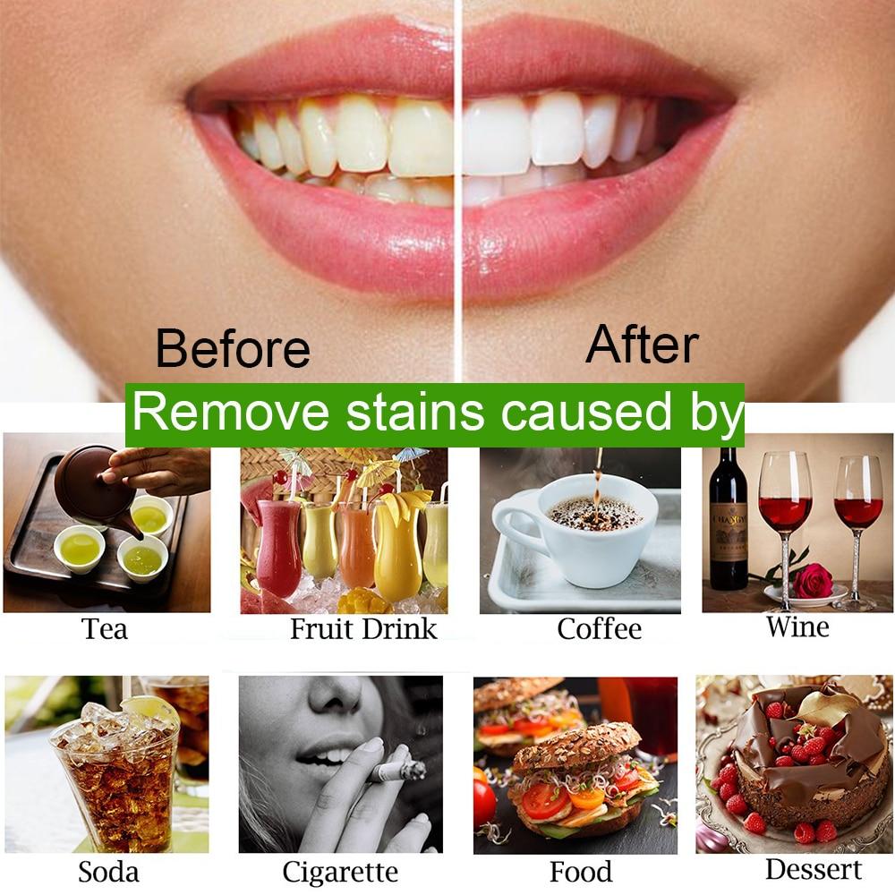 OSHIONER, 30 г, отбеливание зубов, уход за полостью рта, угольный порошок, натуральный активированный уголь, отбеливающий порошок для зубов, гигиена полости рта