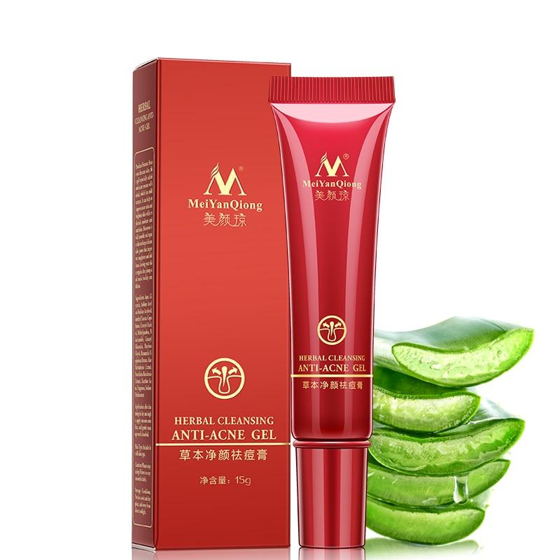 Купить с кэшбэком Herbal Acne Treatment Cream Removes Facial Acne Marks Skin Acne Spots Care Shrink Pores Eliminates Acne Cream Oil control Repair