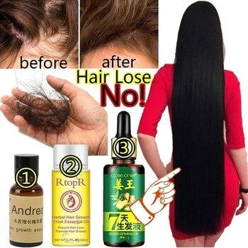 30/20/10 ML Ginger Hair Growth Essence 7 Days Germinal Serum Oil  Prevent Loss Damage