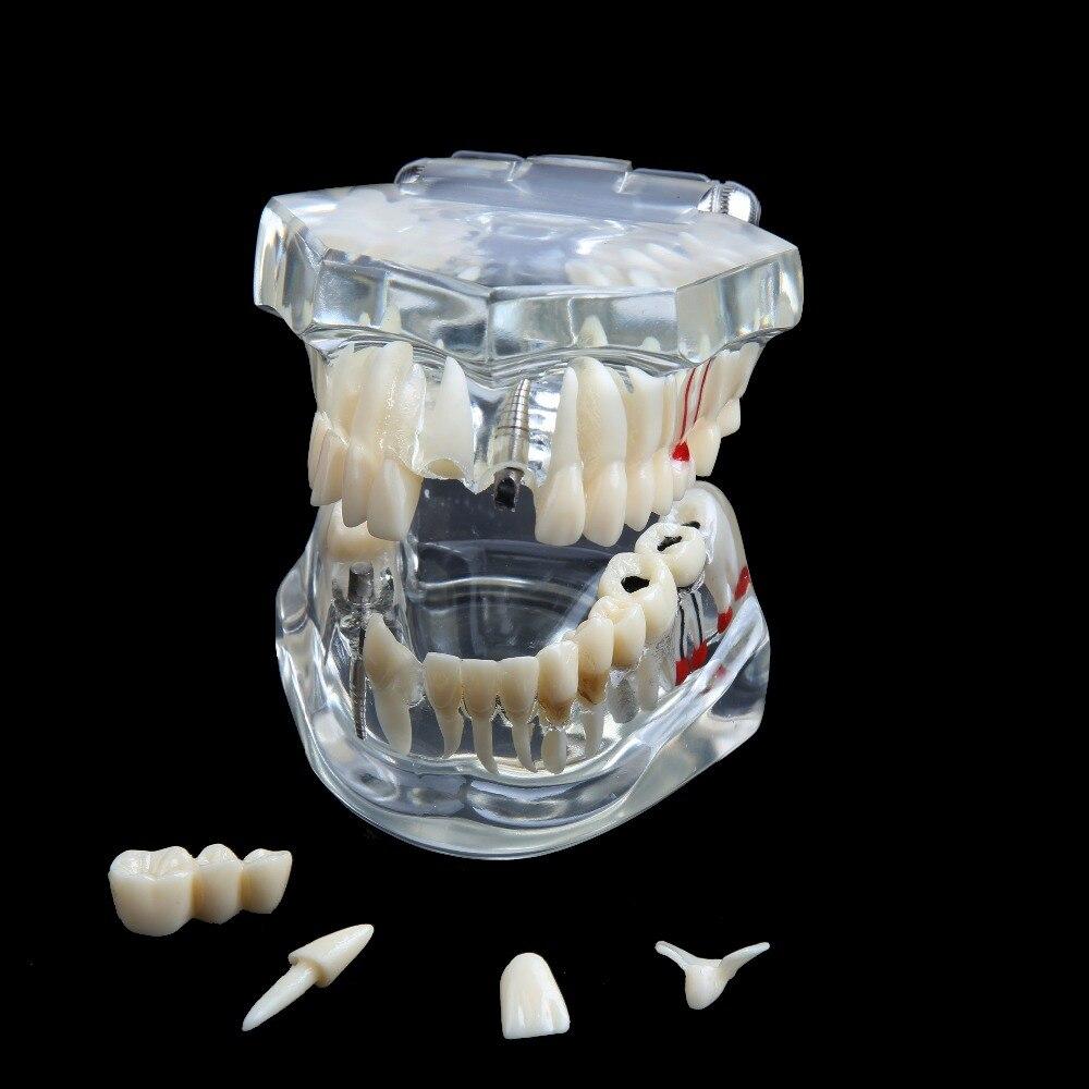 do implante da higiene oral dos pces