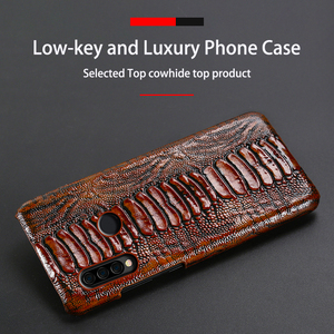 Image 4 - Leather Phone Case For Huawei Honor 30 30S X10 20 20i 10 10i 9 8 Lite 9X 8X Max 7X 7A V30 Pro V20 V10 Ostrich Foot Texture Cover
