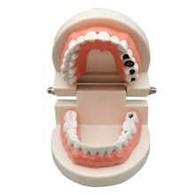 Simulated Tooth Decay Model Dental Teaching Models, Dentist Oral Care Cleaning Tooth Practice Module Instrument, Kids Tooth Toys