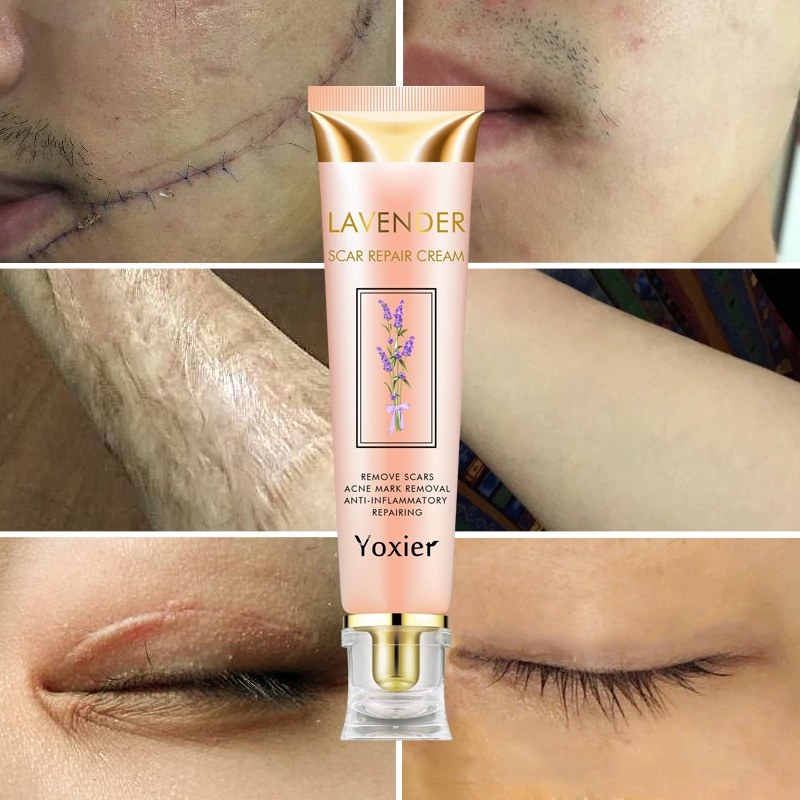 2019 New Repair Scar Cream Removal Acne Scars Stretch Marks Cream Surgical Scar Burn For Body Pigmentation Corrector Care