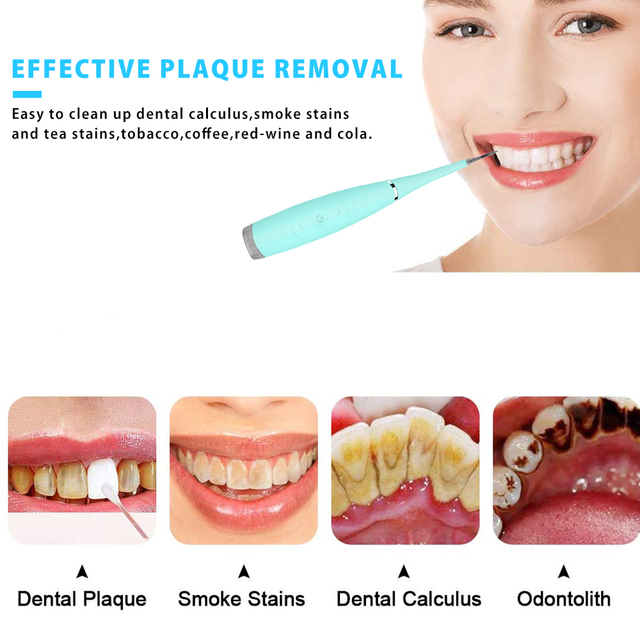 Electric Ultrasonic Sonic Dental Scaler Tooth Calculus Plaque Remover Tool Kit Portable Stains Tartar Clean Tool Whiten Teeth