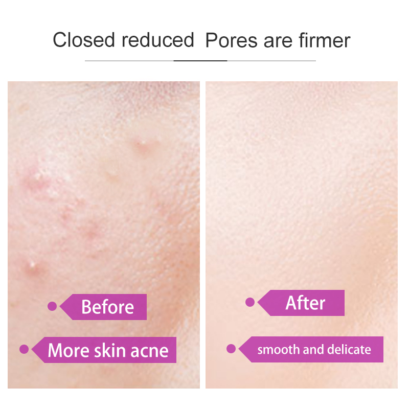 Fonce Korea Perilla Astringent Pore Toner Soothing Repair To Close Acne Control Oil Moisturizing Makeup Water Whitening Light 2