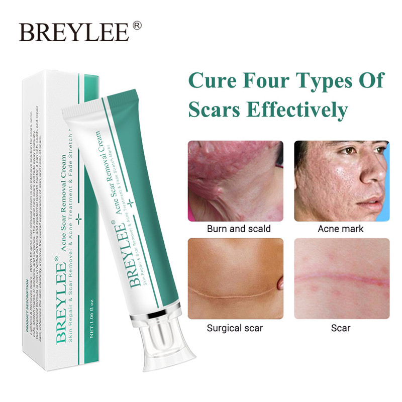 Breylee Acne Scar Removal Cream 30g Face Cream Skin Repair Skin