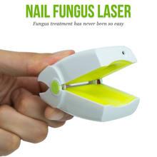 Unhas dedo do pé unha fungo frio laser terapia onychomycosis tratamento dispositivo instrumento anti fúngico recarregável lllt