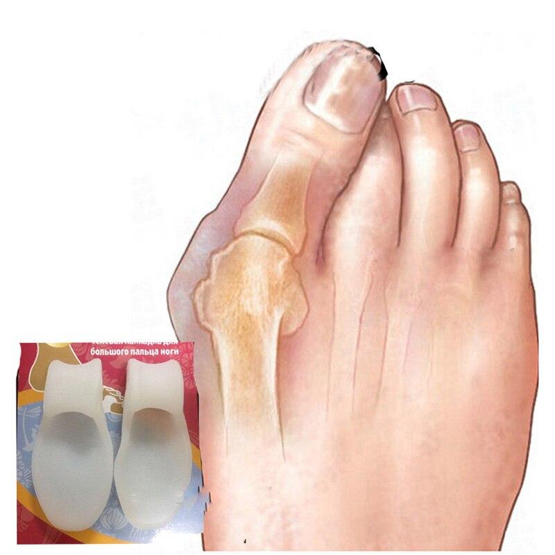 Silicone-Gel-Foot-Toe-Separator-Thumb-Hallux-Valgus-Corrector-Orthopaedic-Foot-Protector-Bunion-Adjuster-Feet-Care (1)