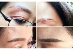 Brandende/brandwonden, chirurgische litteken reparatie sets, concave/bolle marks, striaegravidarum, hypertrofische littekens