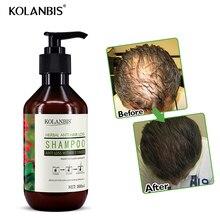 Натуральные продукты для ухода за волосами, женьшень, шампунь для роста ЛЫСЫХ волос для мужчин, масло для волос, против выпадения волос, без побочных эффектов