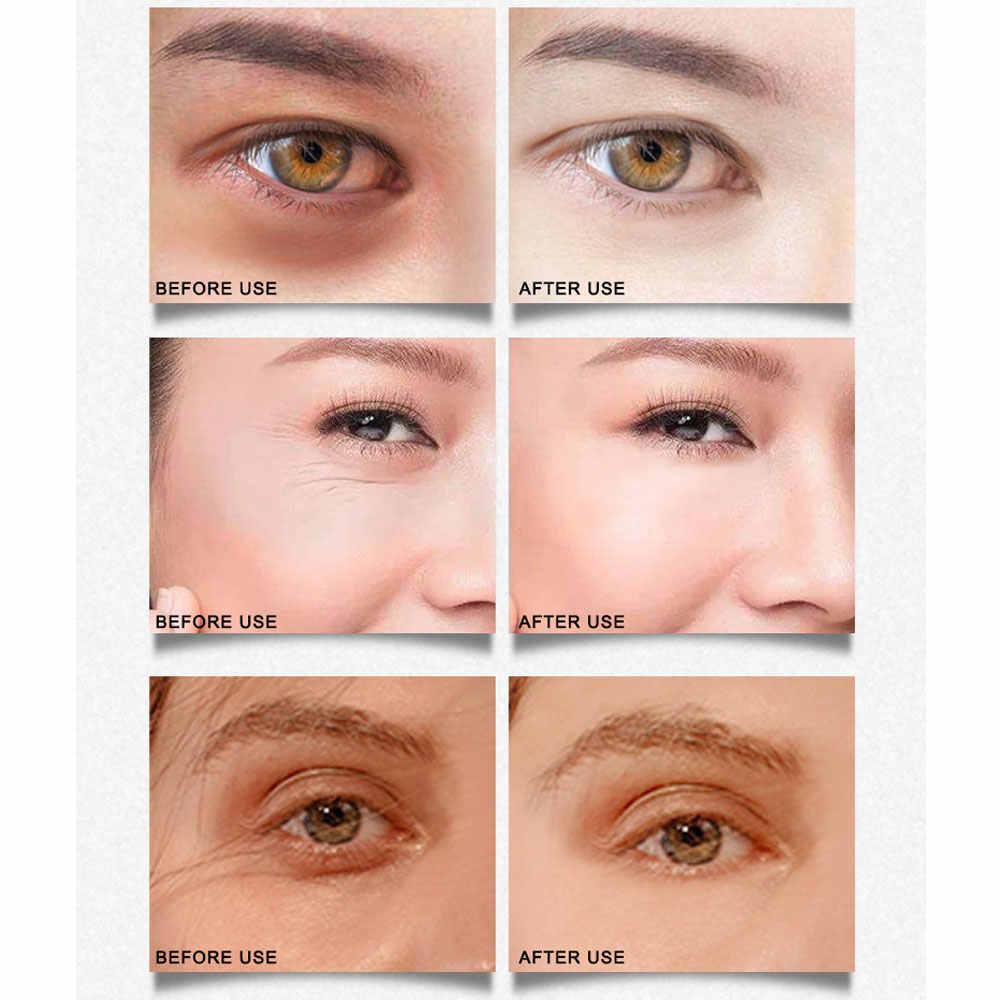 ARTISCARE الذهب أوسمانثوس/أسود اللؤلؤ كريستال الكولاجين العين بقع تحسين الهالات السوداء المضادة للتجاعيد العين كيس النوم قناع عين