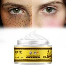 Clareamento de creme de sarda remoção facial cuidados com o rosto reparação remover manchas escuras removedor creme tratamento de clareamento