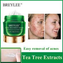BREYLEE Acne Treatment Cream Anti Acne Face Cream Remove Pimple Spots Oil Control Shrink Pores Smoothing Skin Care Tea Tree 20g