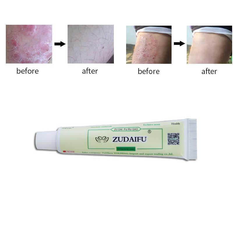 10 шт./лот zudaifu крем от псориаза идеально подходит для дерматита и зуд псориаз травяная мазь кремы