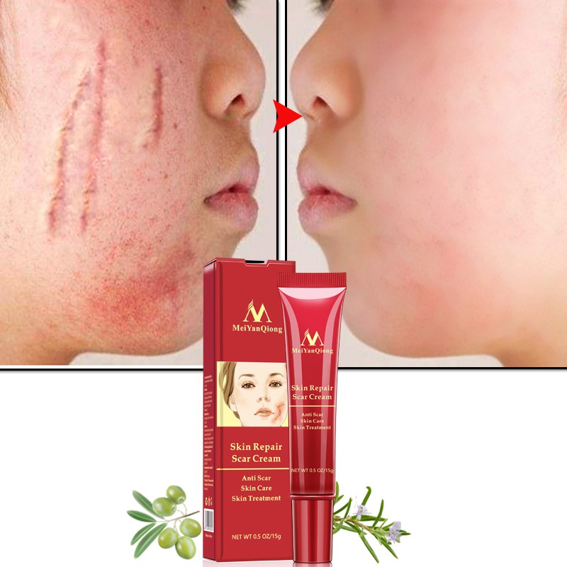 Cream Stretch Marks Acne-Treatment Skin-Repair Scar-Removal Anti-Scar Blackhead 15g Face-Cream-Acne-Spots