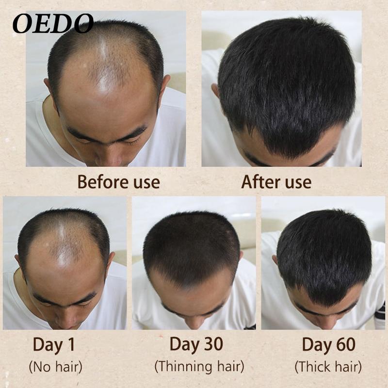 Марокканский травяной женьшень, кератин для ухода за волосами для мужчин и женщин, Мужская выпадение волос, мощный Уход за волосами, сыворот...