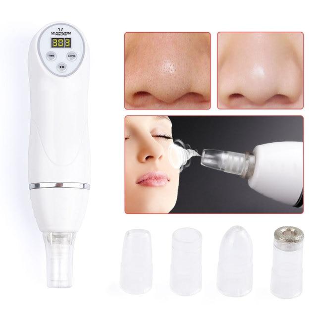 Diamond 17 Potable Microdermabrasion Diamond Peeling Device Blackhead Removal Skin Peel Diamond Dermabrasion Facial Massage 5