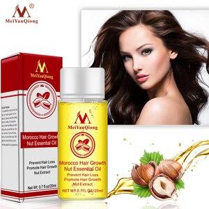 MeiYanQiong 20ML Fast Powerful Hair Growth Essence Hair Loss Products Essential Oil Liquid Treatment Preventing Hair Loss Hair