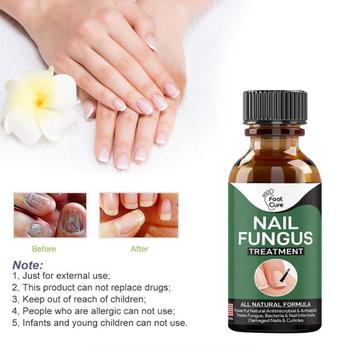 30ml Fungal Nail Repair Essence Serum Care Treatment Removal Fungus Onychomycosis Foot Anti Infection Gel Nail Paronychia J3A9 image