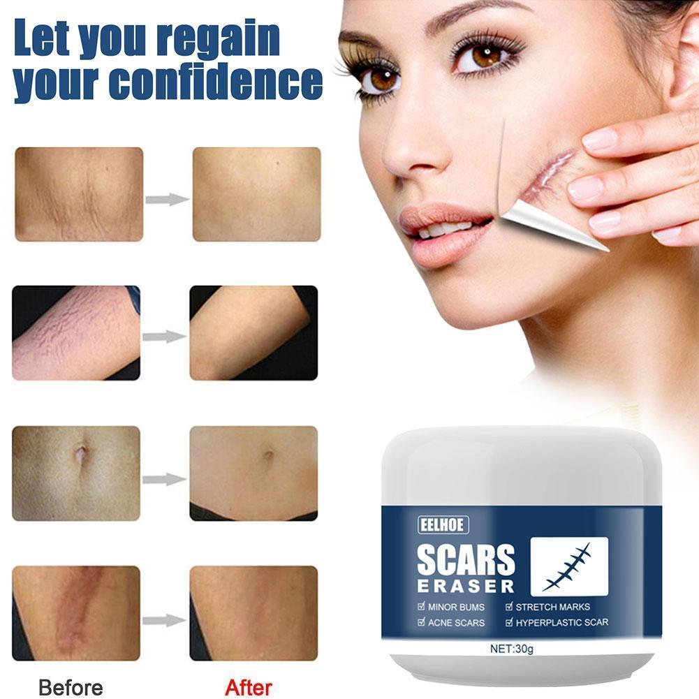 30g Scar cold compress gel Scar Removal Cream Acne Surgical Burn Scars Pigmentation Scar Corrector Stretch A For Body Gel M A9Z3