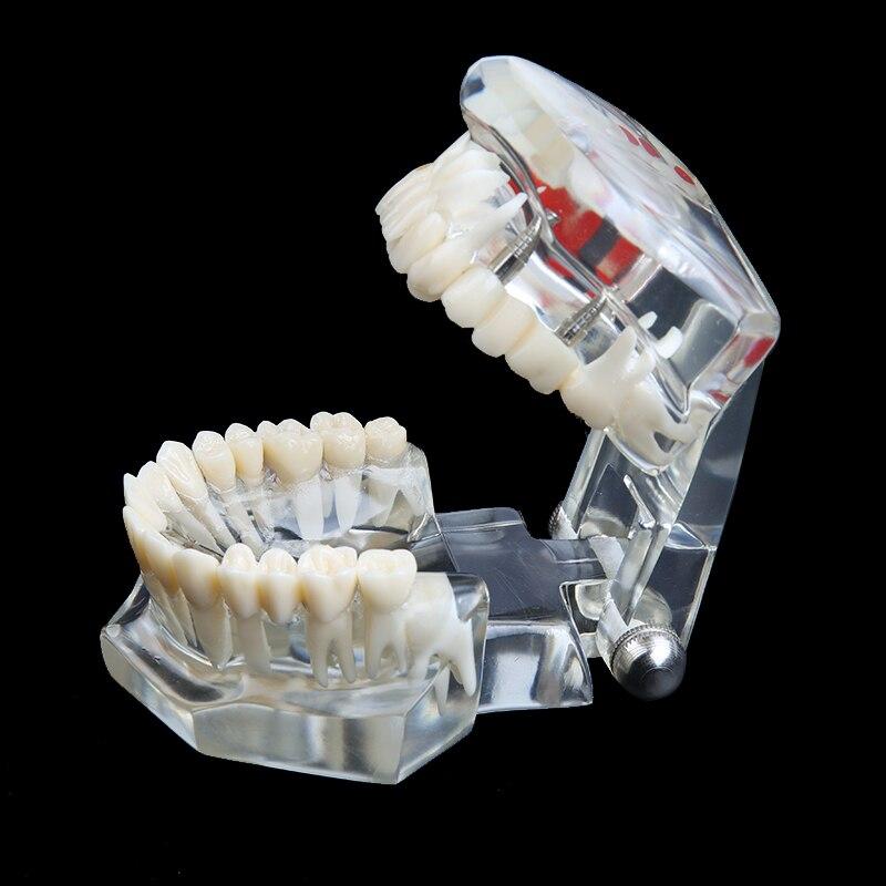 1 modelo dental dos dentes da doenca do implante da higiene oral dos pces para o