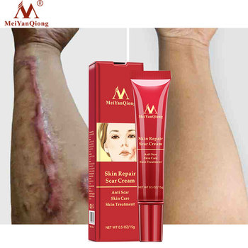 MeiYanQiong Scar Removal Cream Acne Treatment Whitening Cream Remove Stretch Marks Dark Spot Pimples Face Facial Cream Skin Care