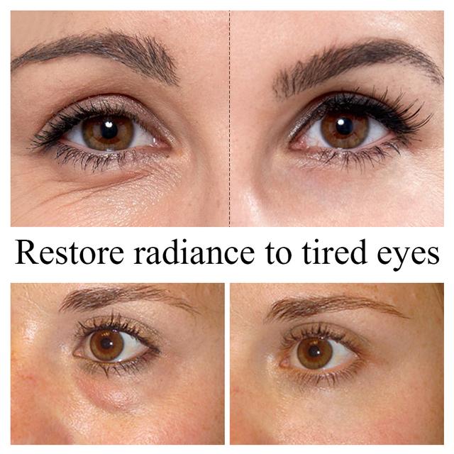 LANBENA Lady Eye Cream Whitening Lifting  Remove Dark Circle Anti Aging Repair Eye Skin Fade Puffy Eyes Firming Skin Care