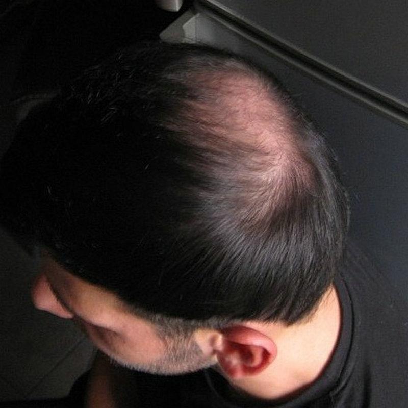 Hstonir Head Crown For Men Hair Closure 5x6