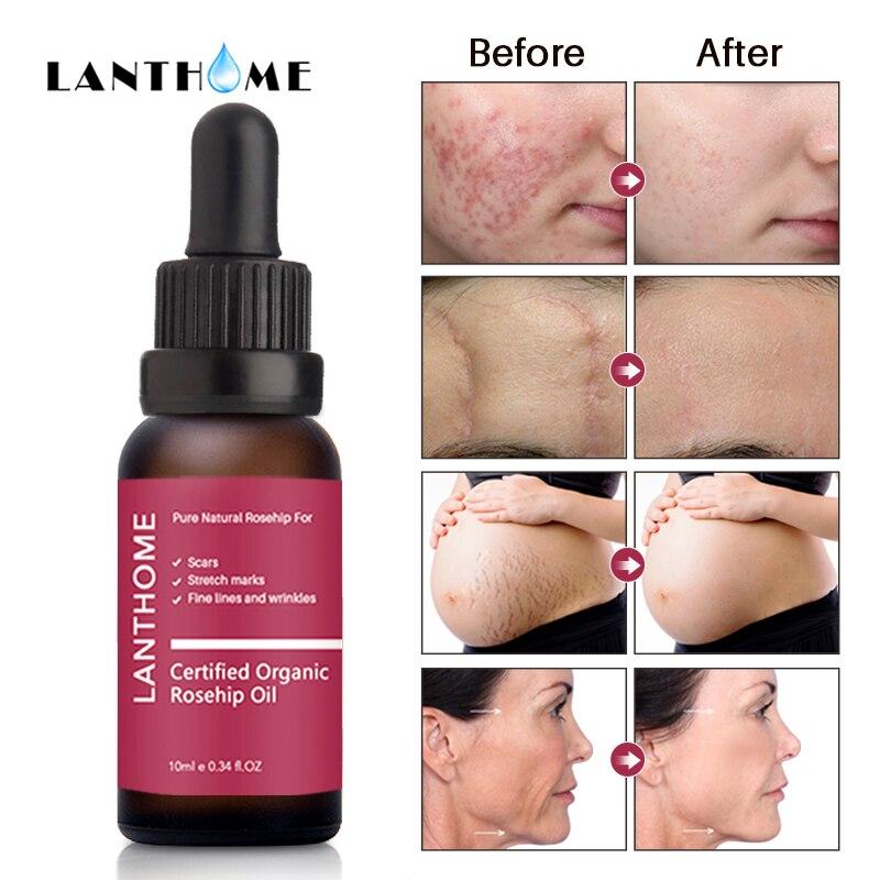 10ml Rosehip Oil Organic Moisturizer Anti Aging Essential Oil Face Skin Care Massage Heal Dry Skin Fineline Wrinkle Stretch Mark