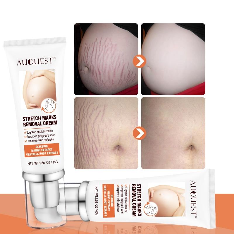 Maternity Stretch Marks Removal Cream Body Buttock Breast Skin Care Effective Anti White Stretch Scar Remover For Pregnant Women
