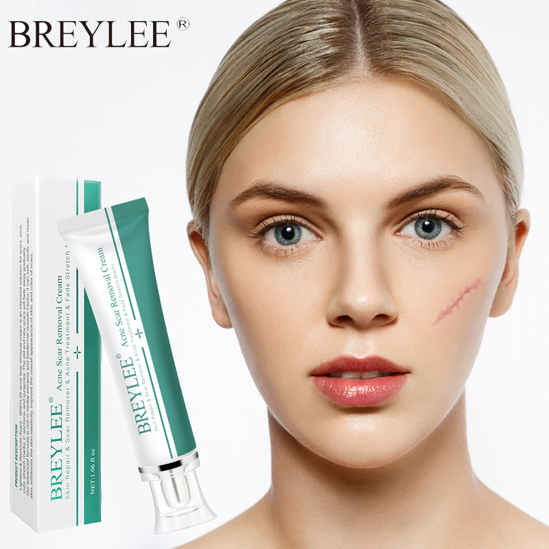 BREYLEE Scar Removal Acne Scar Repair Gel Face Cream Scacne Treatment Cream Moisturizing Skin Care Whitening Skin Repair Stretch