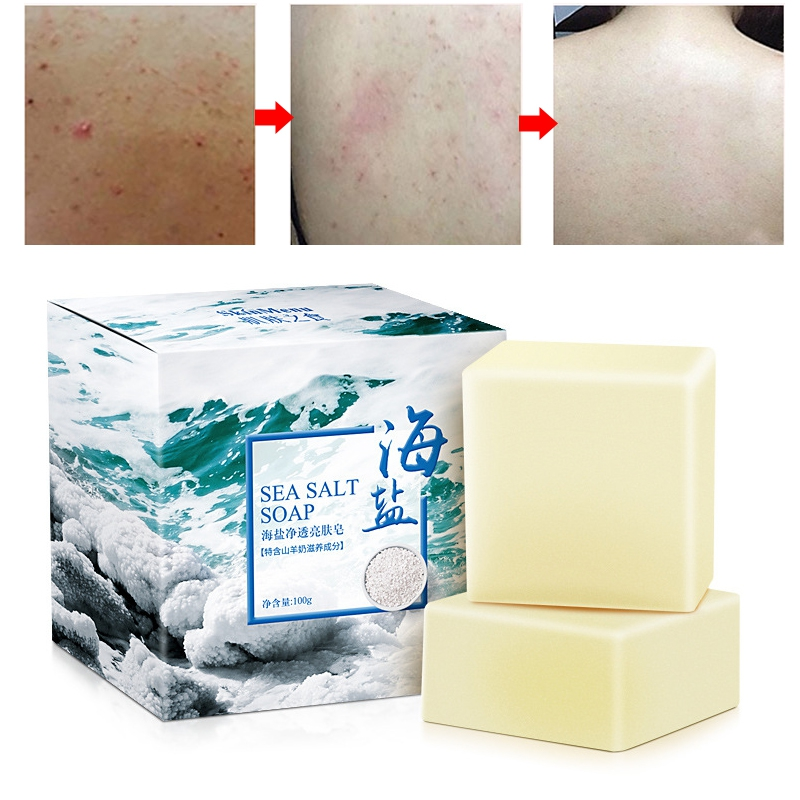 100g Removal Pimple Pore Acne Treatment Sea Salt Soap Cleaner Face Care Wash Basis Soap Face Cleansing XA54