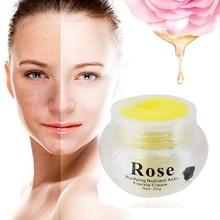 New Rose Whitening Cream Freckles pigmentation Melasma Removal Skin lightening f