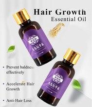 20ml szybki wzrost włosów szybciej rosną odrastanie włosów dla mężczyzn kobiety czyste naturalne włosy utrata produktów Pilatory leczenie utrata włosów