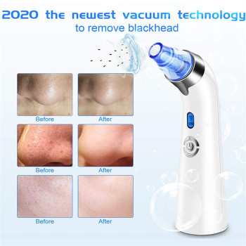 Facial Vacuum Blackhead Whitehead Remover Electric Face Nose Cleaner T Zone Pore Acne Pimple Removal Skin Care Beauty Clean Tool facial vacuum blackhead whitehead remover electric face nose cleaner t zone pore acne pimple removal skin care beauty clean tool