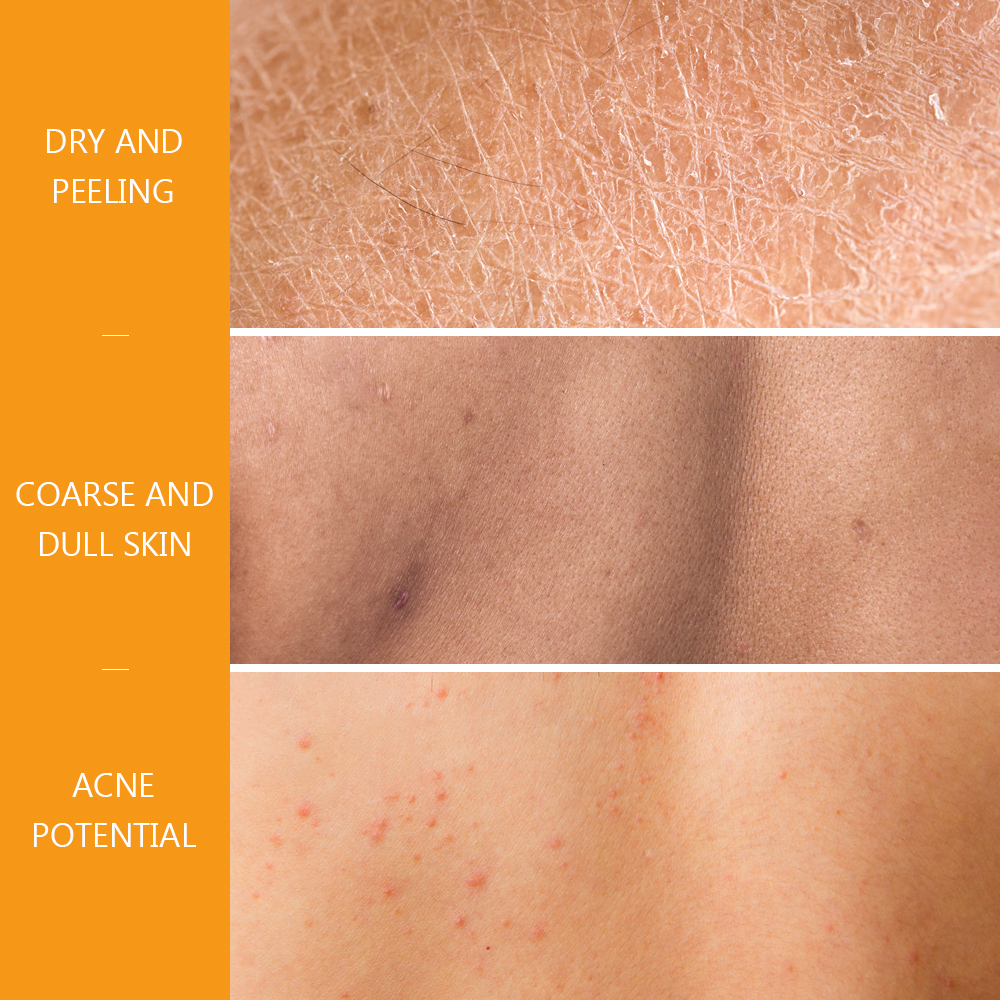 VIBRANT GLAMOUR Crocodile Repair Shower Gel Nourishing Who Body Oil Control Anti-acne Deep Clean Whitening Body Care 200мл