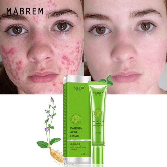 Effective Acne Removal Cream Acne Treatment Fade Acne Spots Oil Control Shrink Pores Whitening Moisturizing Acne Cream Skin Care 3