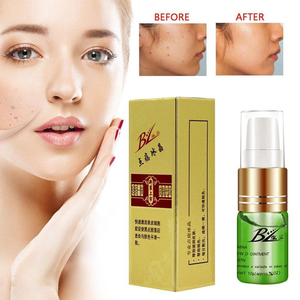 Painless Mole Skin Dark Spot Removal Face Wart Tag Freckle Removal Cream Firm Skin  Freckle Moisturizer Relieve Stress  Oi B4B7