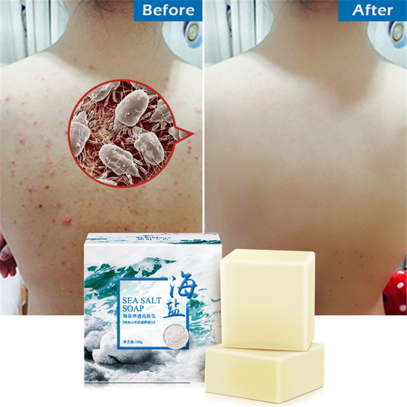 Natural Sea Salt Soap Cleaner Removal Pimple Pores Acne Treatment Goat Milk Moisturizing Face Body Skin Care Wash Basis Soaps