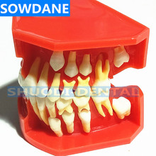 Dental Children Deciduous Teeth Model Replacement Model Permanent Teeth Alternate Display Removable Demonstration for Teaching dental premature disease teeth model transparent caries pathological demonstration tooth child study teaching showing 2018