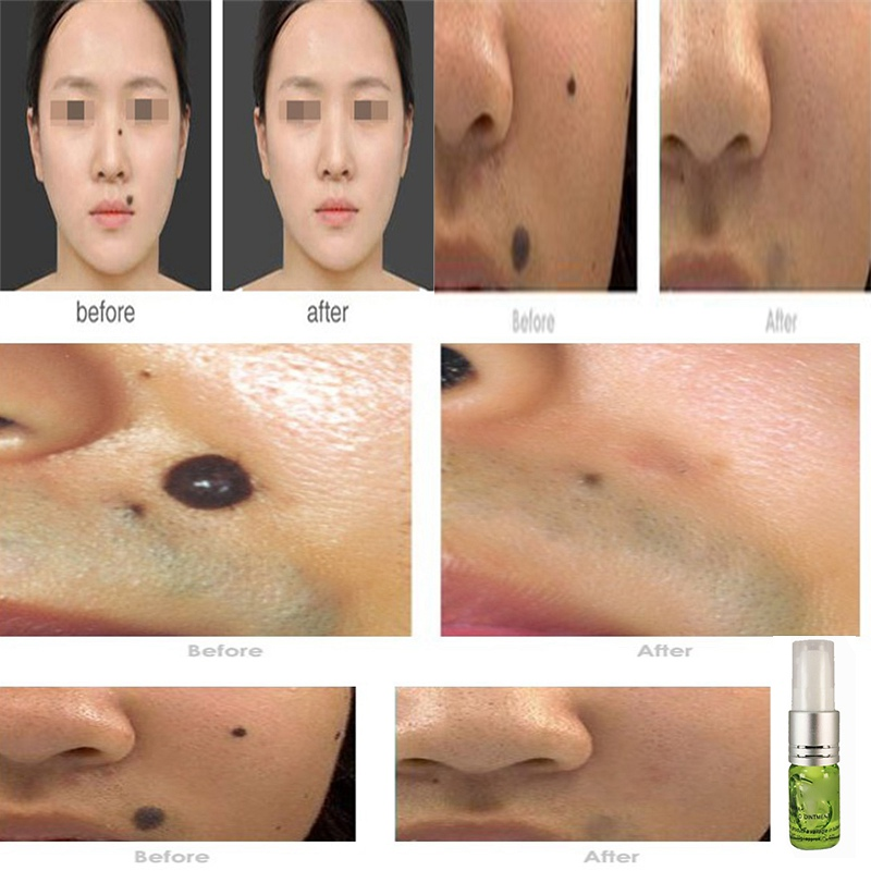 Wart Skin Tag Spot Freckle Mole Removal Repair Aftercare Cream Skin Care Anti Scar Point Mole Cream Facial Self Tanners Bronzers Aliexpress