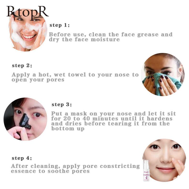 Mango Comedondrukker Acne Treatment Neus Olie-Control Modder Porie Strip Masker Whitening Cream Peel Off Masker Neus Schil huidverzorging