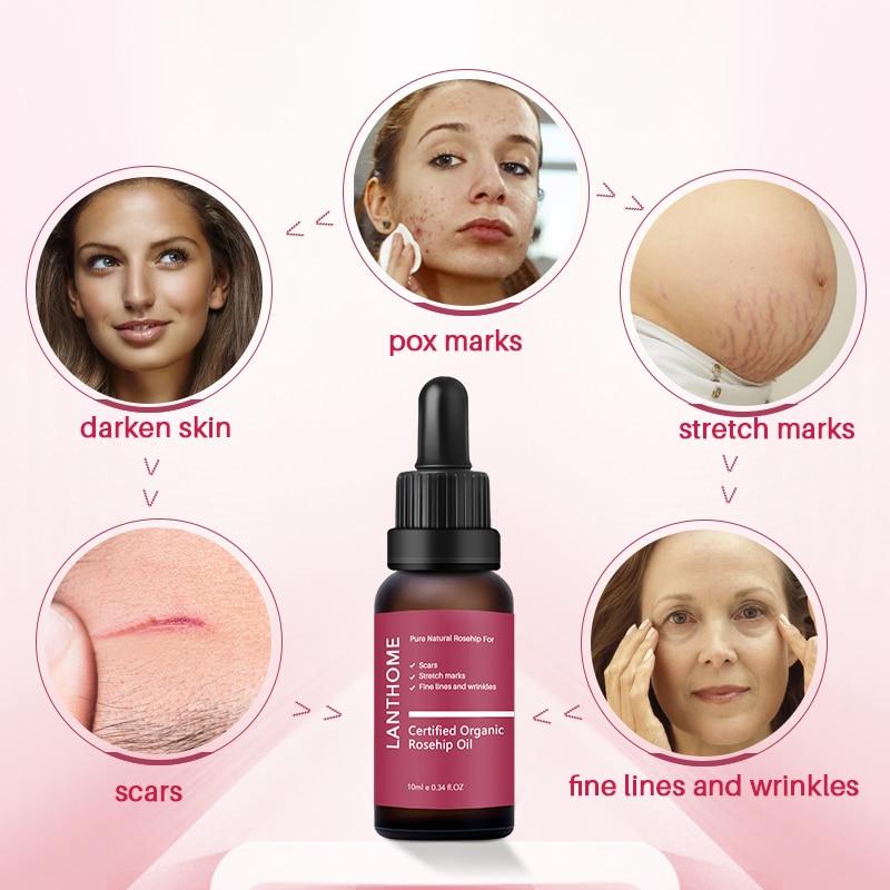 Pansly Pure Organic Rosehip Oil Antioxidantfor Scars Fine Lines Wrinkles Stretch Marks Improve Skin Elasticity Firmness 2